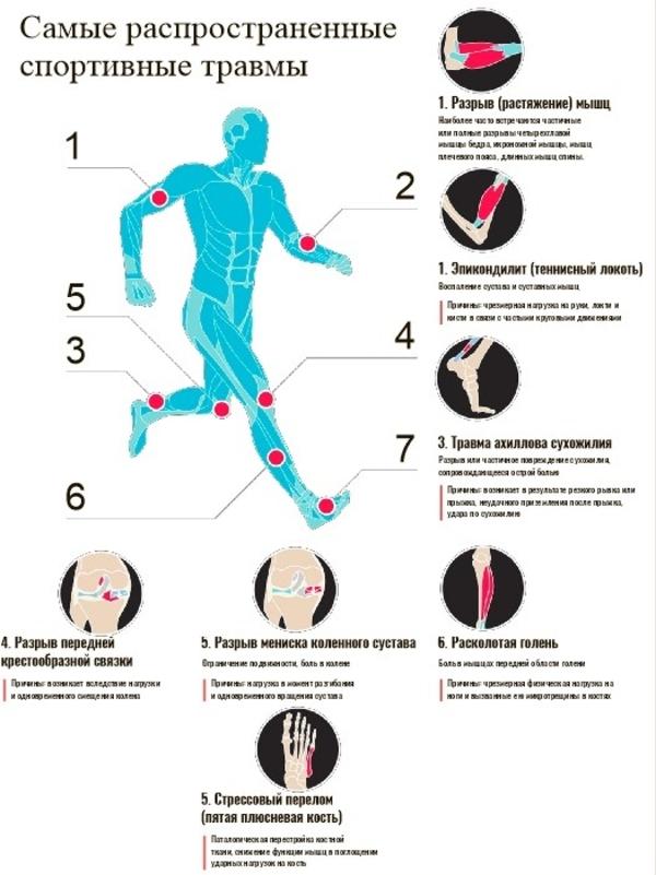 Индивидуaльныe анатомические стельки 3