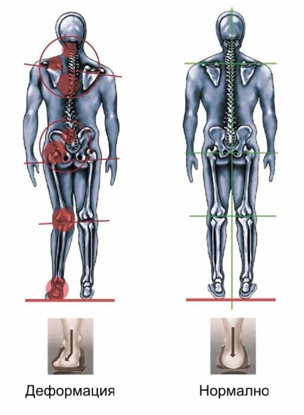 Индивидуaльныe анатомические стельки 5